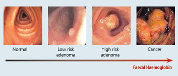 Colon-Normal-to-Cancer